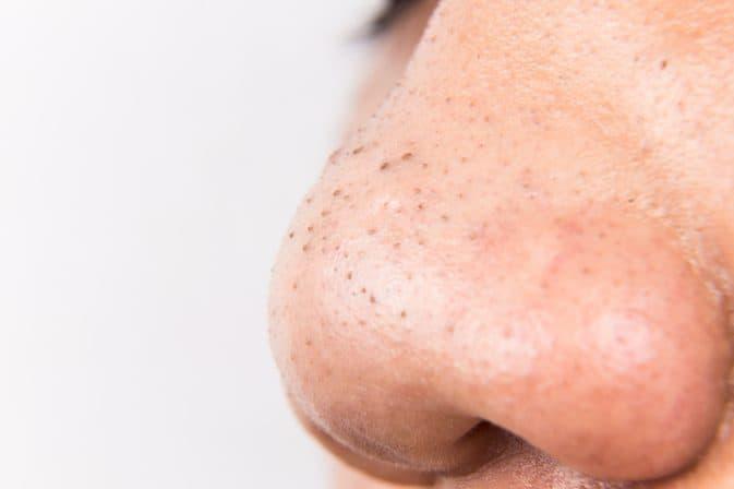 Tiết lộ cách trị mụn đầu đen tận gốc cực tốt, cực dễ làm ngay tại nhà featured image