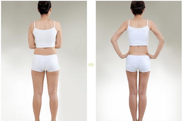 Vì sao giảm mỡ chân không thành công? Phương pháp nào tốt nhất? featured image